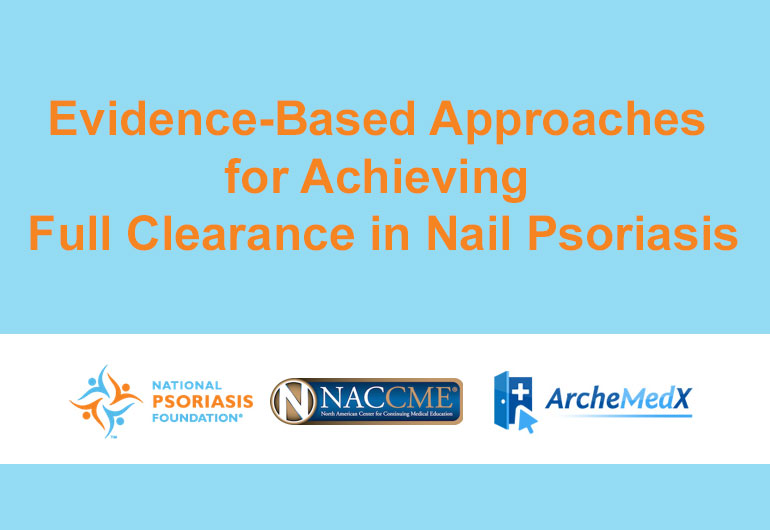 Achieving Full Clearance in Nail Psoriasis
